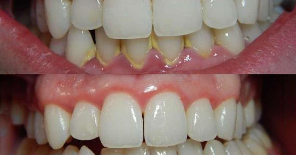 dişlerinizi yağlar ile temizleme