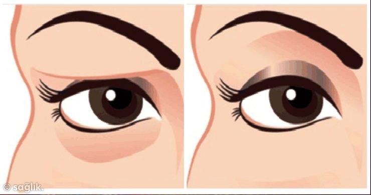 göz kapağı tedavisi