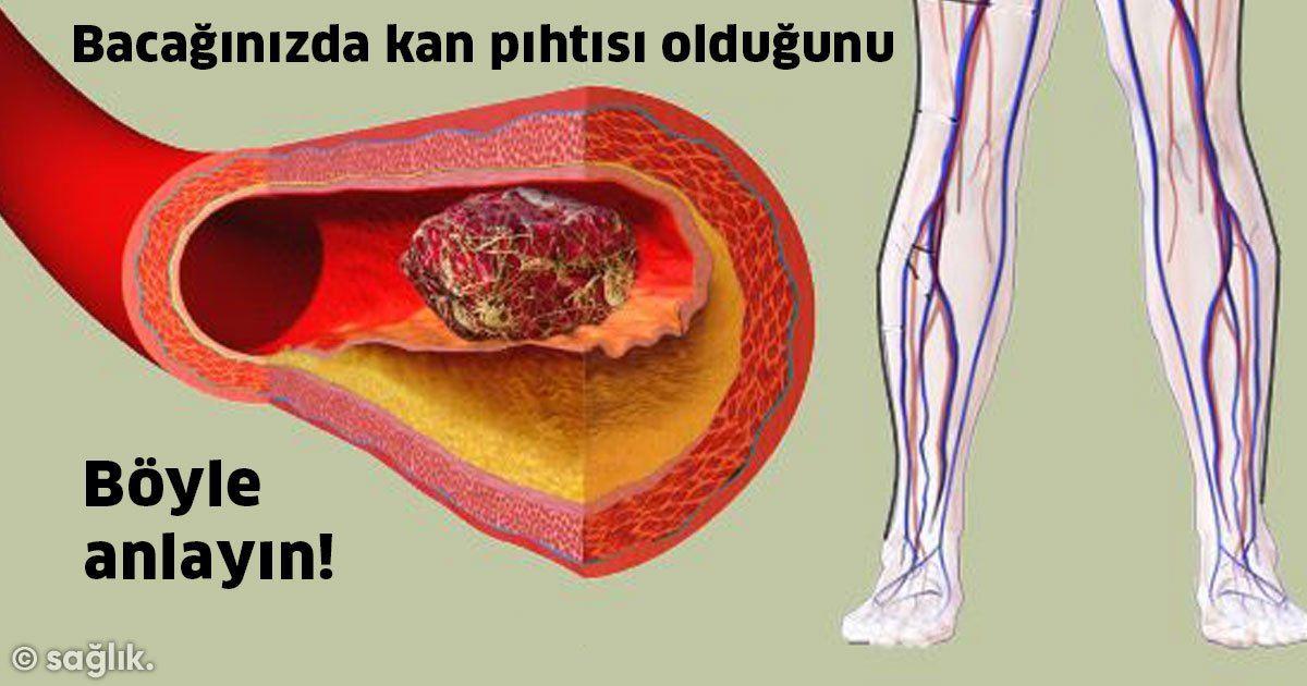 Bacağınızda Kan Pıhtısı Olduğunu Böyle Anlarsınız!