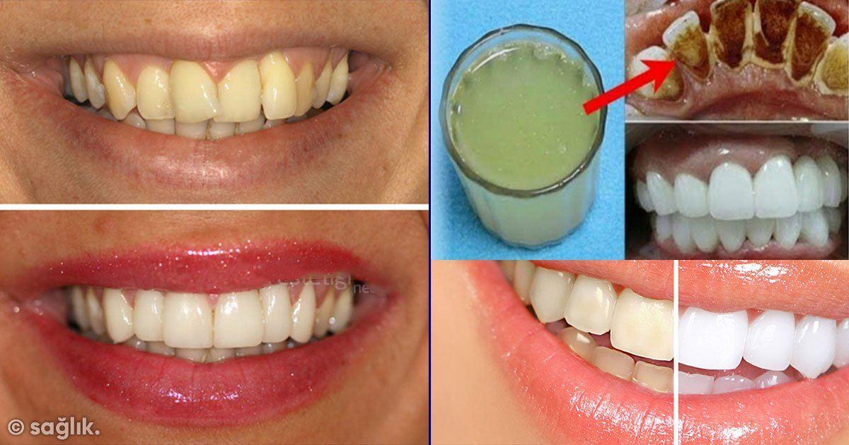 2 Dakikada Sarı Dişleri Bu Yöntemle Beyazlatın ve Ağız Kokusunu Yok Edin